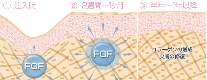 FGF(线维芽细胞増殖因子)注入のしくみ